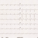 Enigme ECG 1