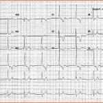 Enigme ECG
